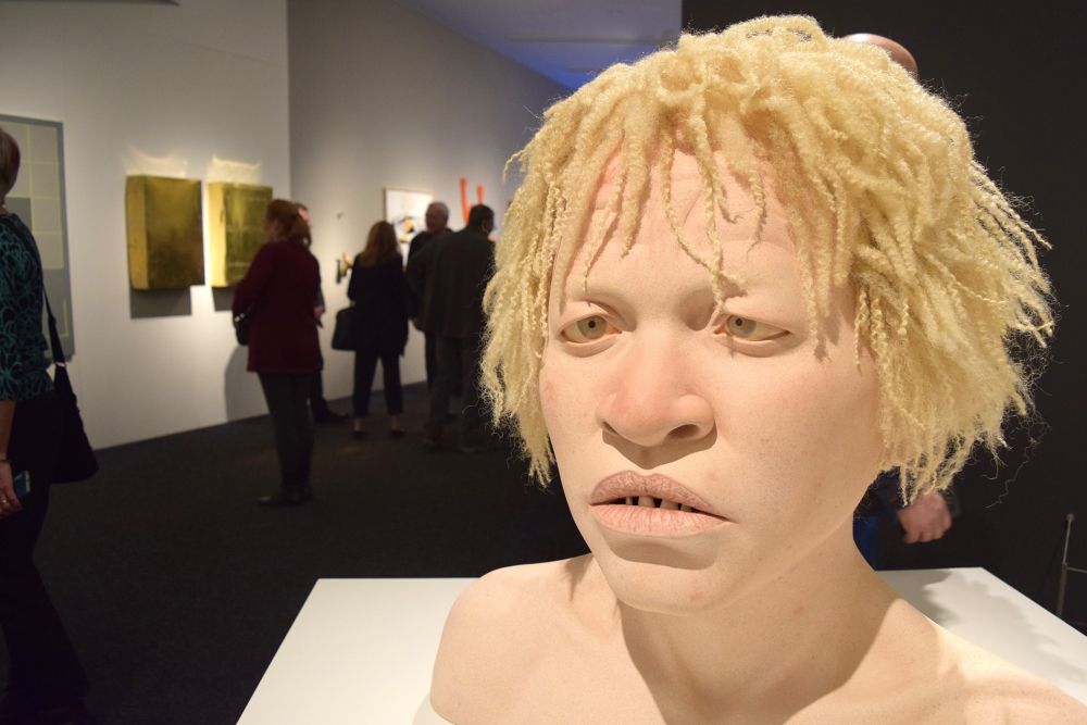 """African Teen With Albinism"" by Tip Toland, stoneware clay, paint, chalk pastel, synthetic hair, 2013."